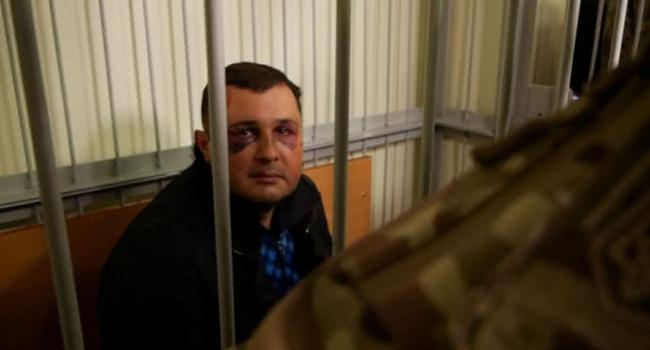 «У меня сломана челюсть, мне трудно говорить»: экс-депутата Шепелева доставили в суд с синяками на лице