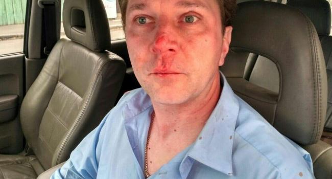 Избиение по-зверски: в Киеве «титушки» избили врача, который рассказал о коррупции в медицине