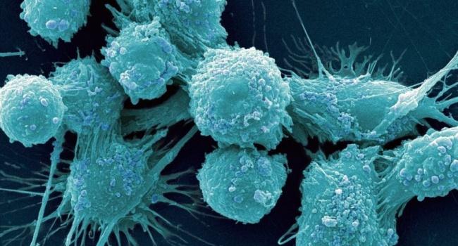 Ученые озвучили самую неожиданную причину развития рака